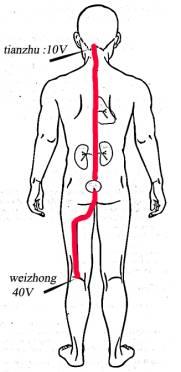 Giroudoterapiya le traitement de lépine dorsale