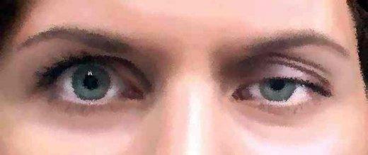 Myasthénie oculaire associée à une anosmie : une analyse selon la ...