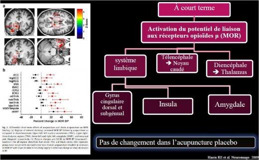 L'imagerie par TEP permet de visualiser les aires cérébrales impliquées Points rouges  acupuncture réelle : augmentation de la liaison aux récepteurs MOR  correspond à activation Endorphines (α,β,γ endorphines) et Endomorphines 1 et 2